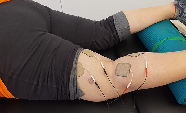 Leg with bruises hooked up to tens machine